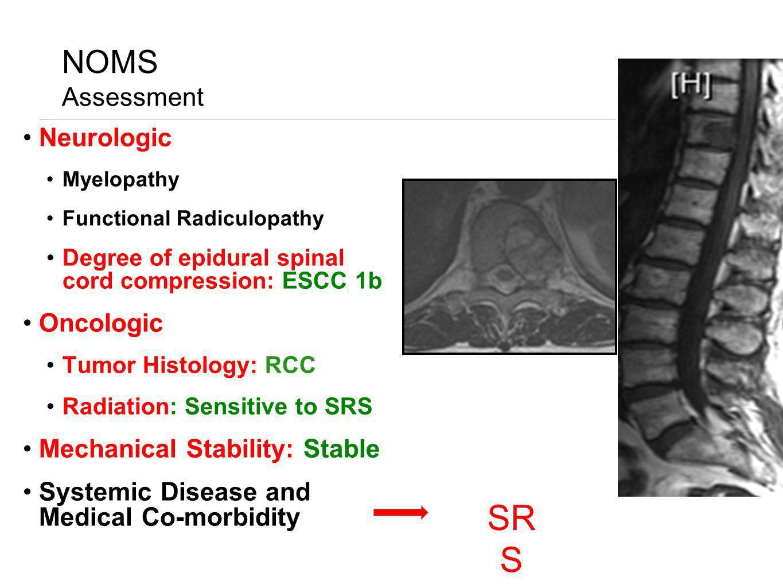 NOMS Assessment Neurologic Myelopathy Functional Radiculopathy Degree of epidural spinal cord compression: ESCC 1b Oncologic Tumor Histology: RCC Radi