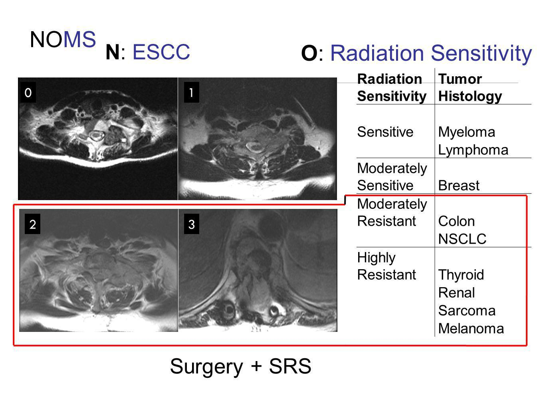 NOMS N: ESCC 0 23 1 Radiation Sensitivity Tumor Histology SensitiveMyeloma Lymphoma Moderately SensitiveBreast Moderately ResistantColon NSCLC Highly