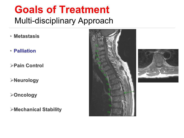 Goals of Treatment Multi-disciplinary Approach MetastasisMetastasis PalliationPalliation Pain Control Pain Control Neurology Neurology Oncology Oncolo