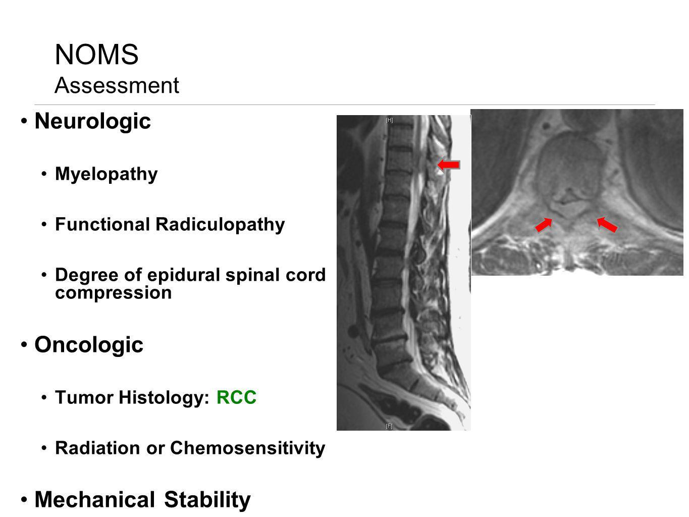 NOMS Assessment Neurologic Myelopathy Functional Radiculopathy Degree of epidural spinal cord compression Oncologic Tumor Histology: RCC Radiation or