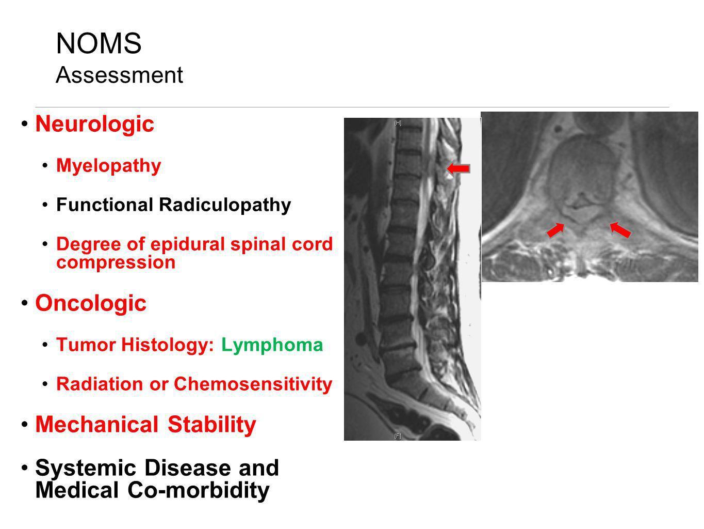 NOMS Assessment Neurologic Myelopathy Functional Radiculopathy Degree of epidural spinal cord compression Oncologic Tumor Histology: Lymphoma Radiatio