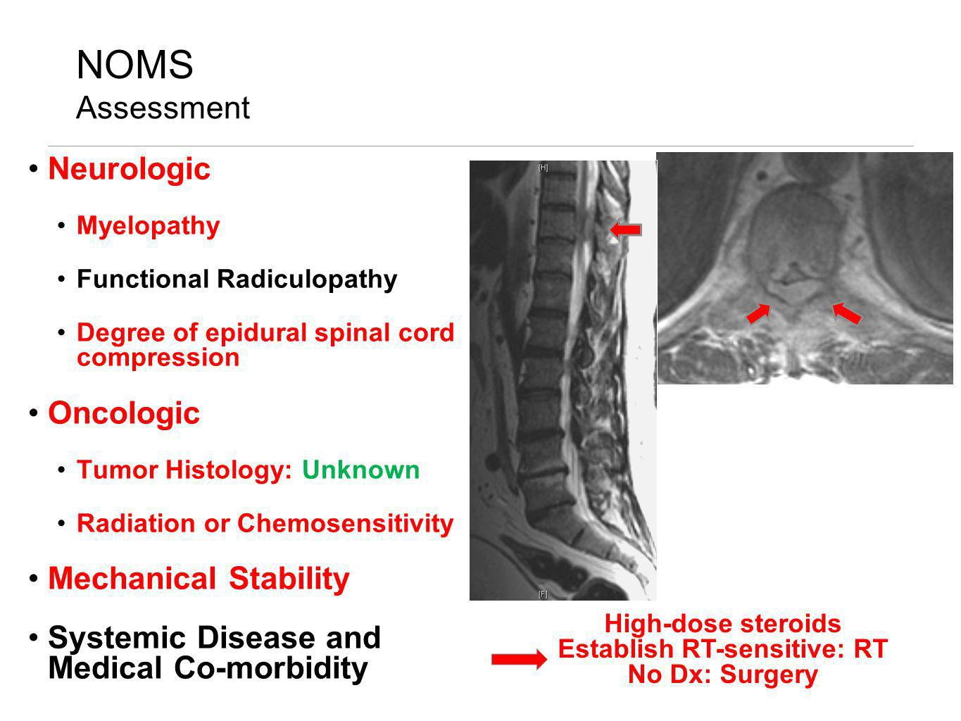NOMS Assessment Neurologic Myelopathy Functional Radiculopathy Degree of epidural spinal cord compression Oncologic Tumor Histology: Unknown Radiation