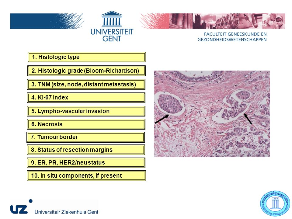 1. Histologic type 2. Histologic grade (Bloom-Richardson) 3.