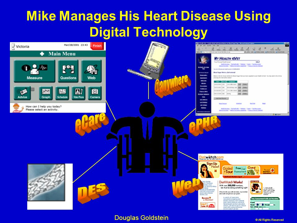 © All Rights Reserved Douglas Goldstein Mike Manages His Heart Disease Using Digital Technology