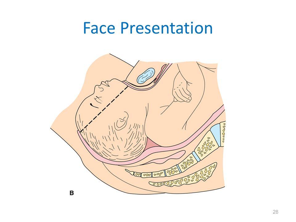Face Presentation 28