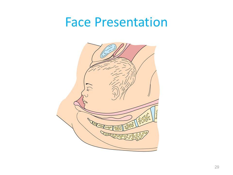 Face Presentation 29