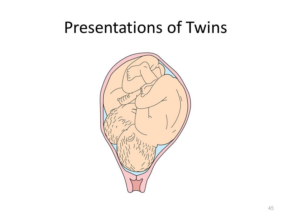 Presentations of Twins 45