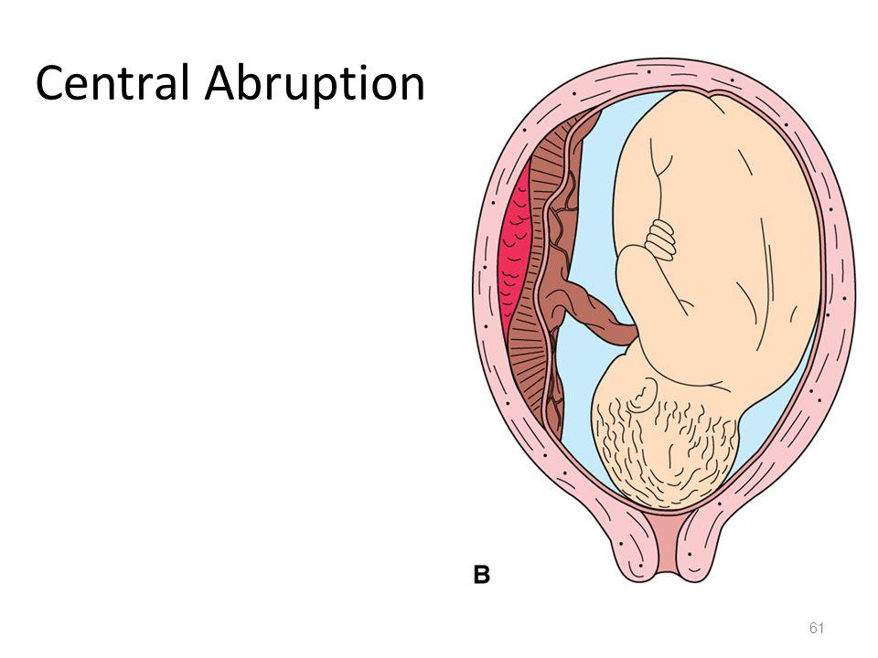 Central Abruption 61