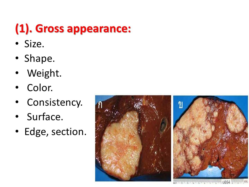 (1). Gross appearance: Size. Shape. Weight. Color. Consistency. Surface. Edge, section.