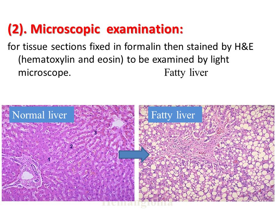 (2). Microscopic examination: for tissue sections fixed in formalin then stained by H&E (hematoxylin and eosin) to be examined by light microscope. Fa
