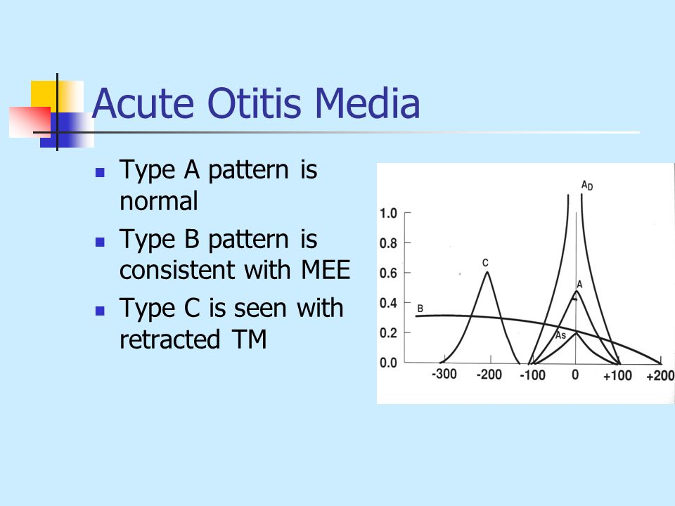 Acute Otitis Media Type A pattern is normal Type B pattern is consistent with MEE Type C is seen with retracted TM