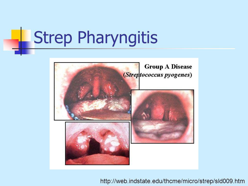 Strep Pharyngitis http://web.indstate.edu/thcme/micro/strep/sld009.htm