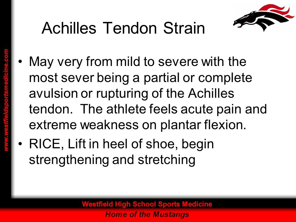 Achilles Tendon Strain May very from mild to severe with the most sever being a partial or complete avulsion or rupturing of the Achilles tendon. The