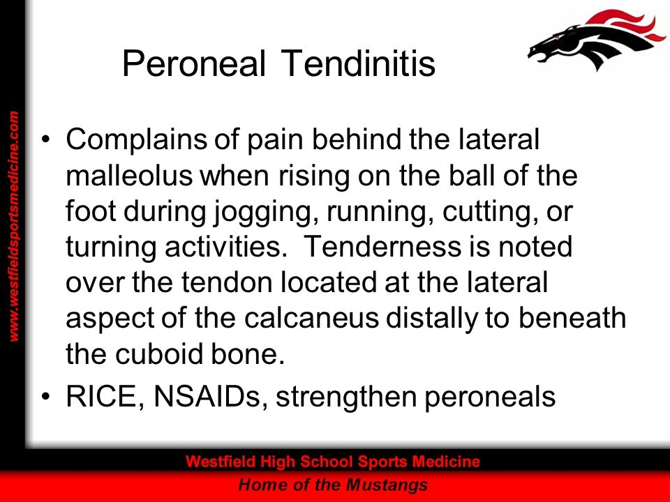 Peroneal Tendinitis Complains of pain behind the lateral malleolus when rising on the ball of the foot during jogging, running, cutting, or turning ac