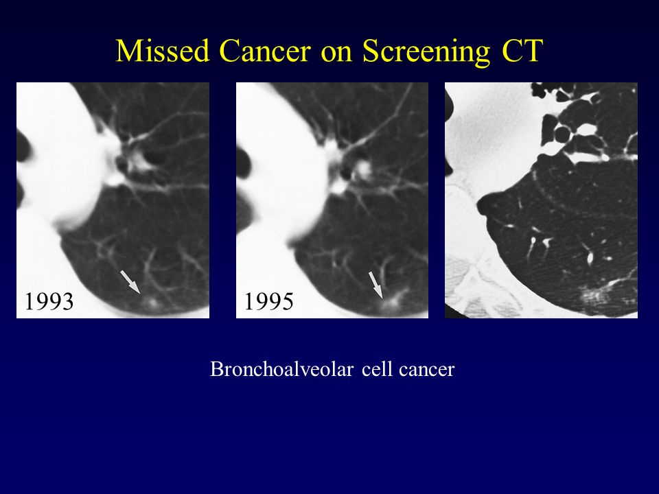 Missed Cancer on Screening CT 19931995 Bronchoalveolar cell cancer