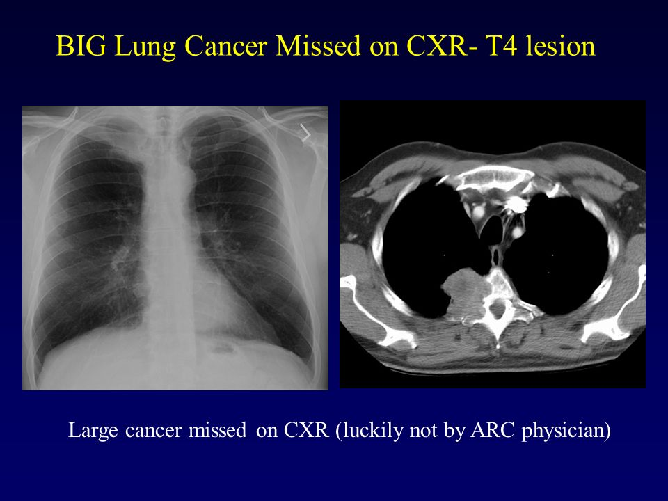 BIG Lung Cancer Missed on CXR- T4 lesion Large cancer missed on CXR (luckily not by ARC physician)