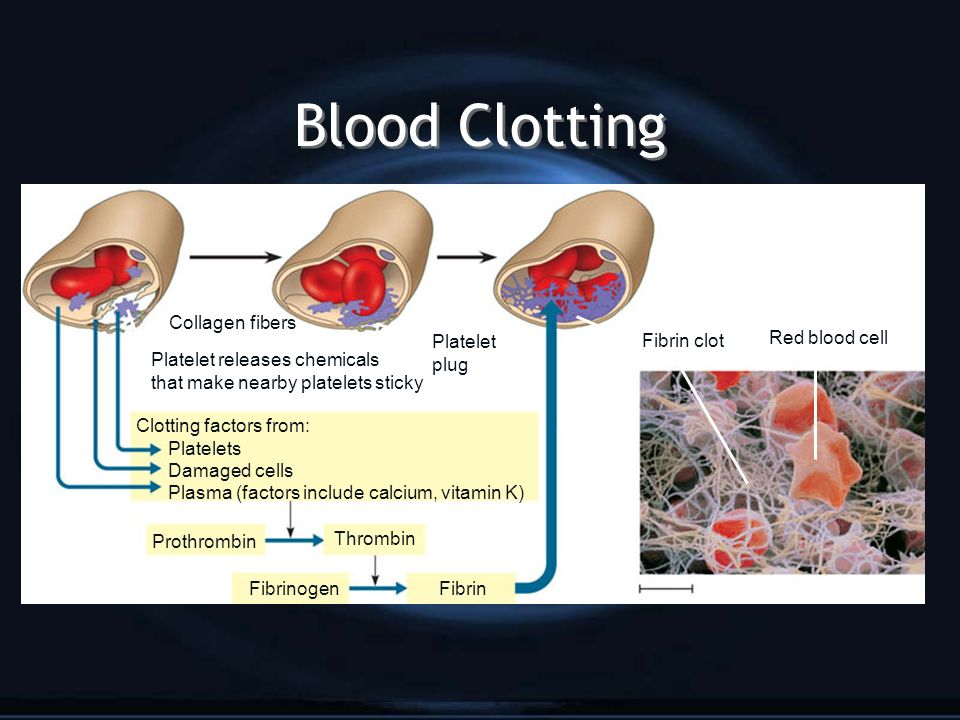 Blood Clotting Platelet plug Collagen fibers Platelet releases chemicals that make nearby platelets sticky Clotting factors from: Platelets Damaged cells Plasma (factors include calcium, vitamin K) Prothrombin Thrombin FibrinogenFibrin Fibrin clot Red blood cell
