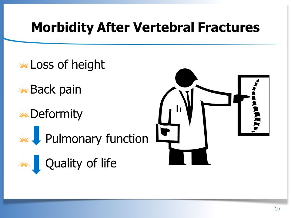 16 Morbidity After Vertebral Fractures Loss of height Back pain Deformity Pulmonary function Quality of life