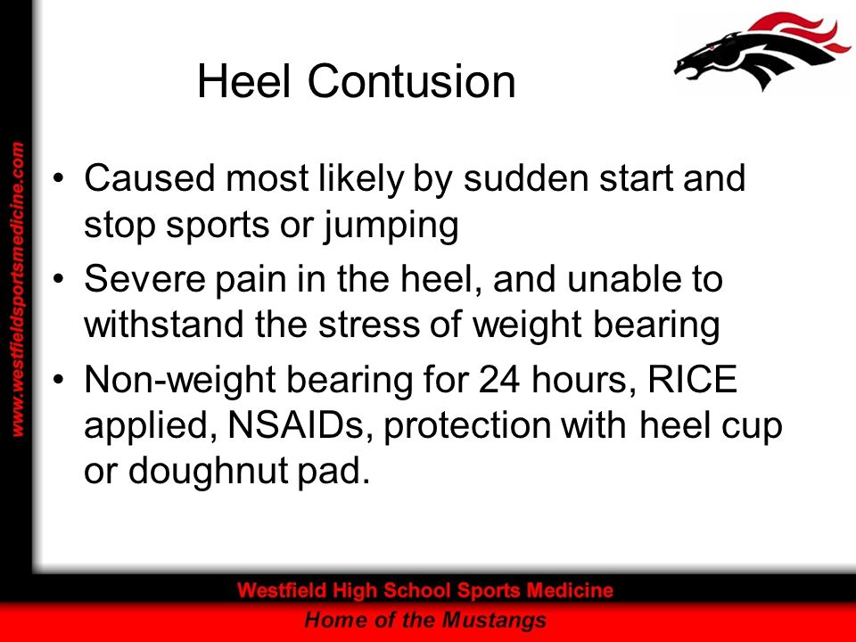 Heel Contusion Caused most likely by sudden start and stop sports or jumping Severe pain in the heel, and unable to withstand the stress of weight bea