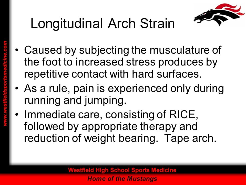 Longitudinal Arch Strain Caused by subjecting the musculature of the foot to increased stress produces by repetitive contact with hard surfaces. As a