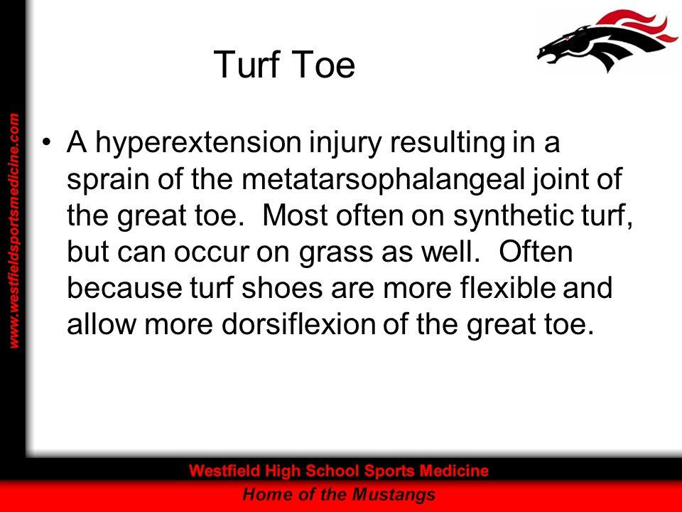 Turf Toe A hyperextension injury resulting in a sprain of the metatarsophalangeal joint of the great toe. Most often on synthetic turf, but can occur