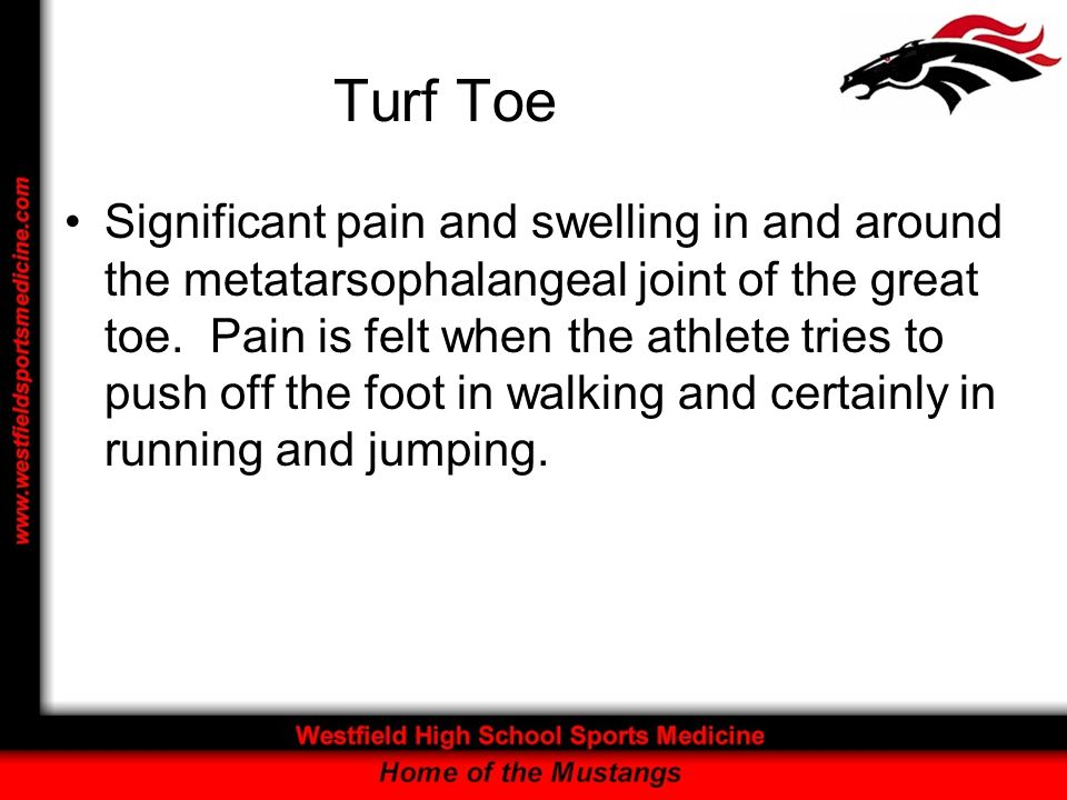 Turf Toe Significant pain and swelling in and around the metatarsophalangeal joint of the great toe. Pain is felt when the athlete tries to push off t
