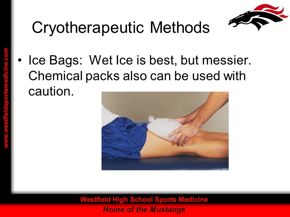 Cryotherapeutic Methods Ice Bags: Wet Ice is best, but messier. Chemical packs also can be used with caution.