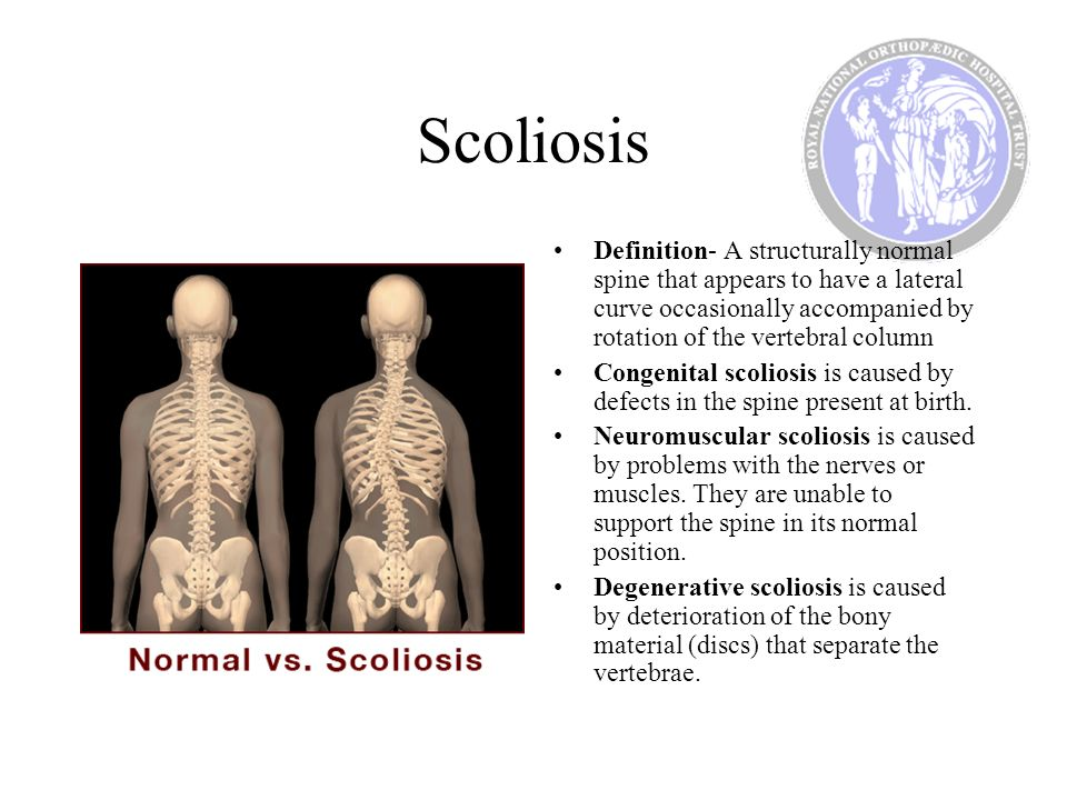 Scoliosis Definition- A structurally normal spine that appears to have a lateral curve occasionally accompanied by rotation of the vertebral column Co