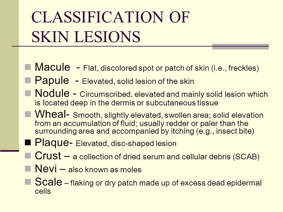 CLASSIFICATION OF SKIN LESIONS Macule - Flat, discolored spot or patch of skin (i.e., freckles) Papule - Elevated, solid lesion of the skin Nodule - C