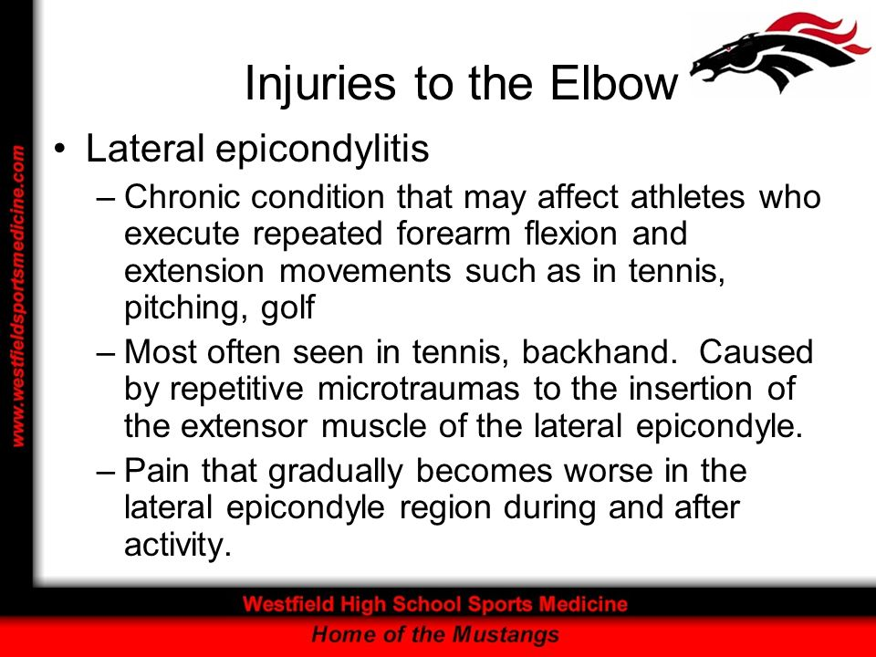 Injuries to the Elbow Lateral epicondylitis –Chronic condition that may affect athletes who execute repeated forearm flexion and extension movements s