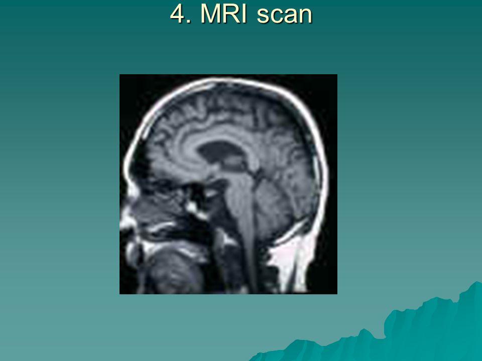 4. MRI scan