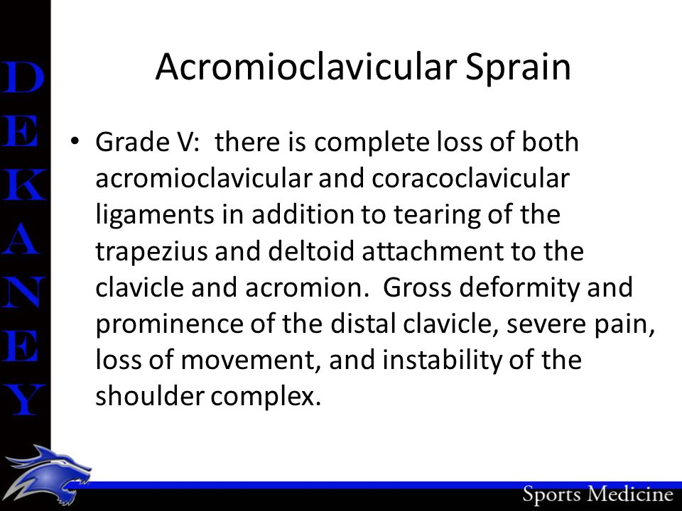 Acromioclavicular Sprain Grade V: there is complete loss of both acromioclavicular and coracoclavicular ligaments in addition to tearing of the trapez