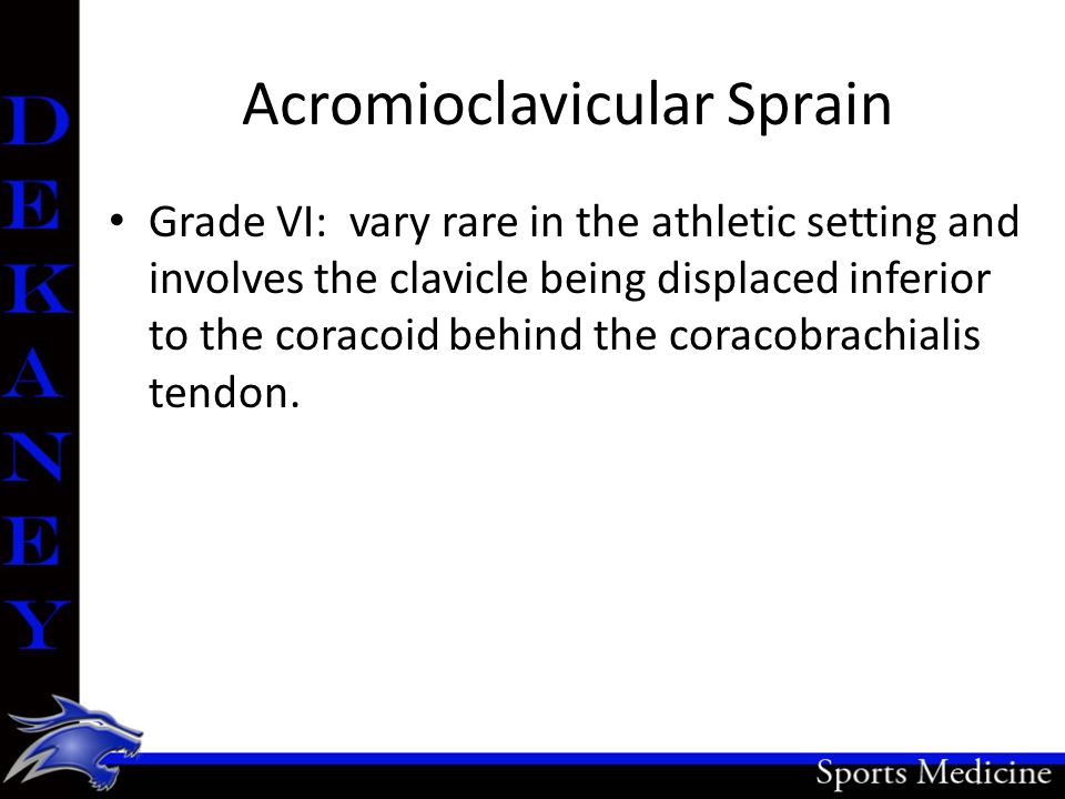 Acromioclavicular Sprain Grade VI: vary rare in the athletic setting and involves the clavicle being displaced inferior to the coracoid behind the cor