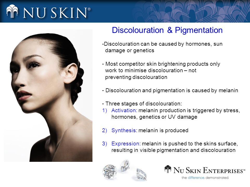 Discolouration & Pigmentation -Discolouration can be caused by hormones, sun damage or genetics - Most competitor skin brightening products only work