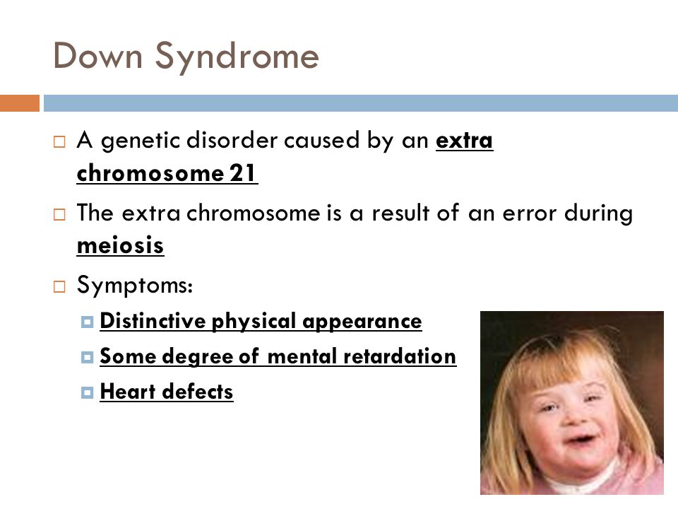 Down Syndrome A genetic disorder caused by an extra chromosome 21 The extra chromosome is a result of an error during meiosis Symptoms: Distinctive ph