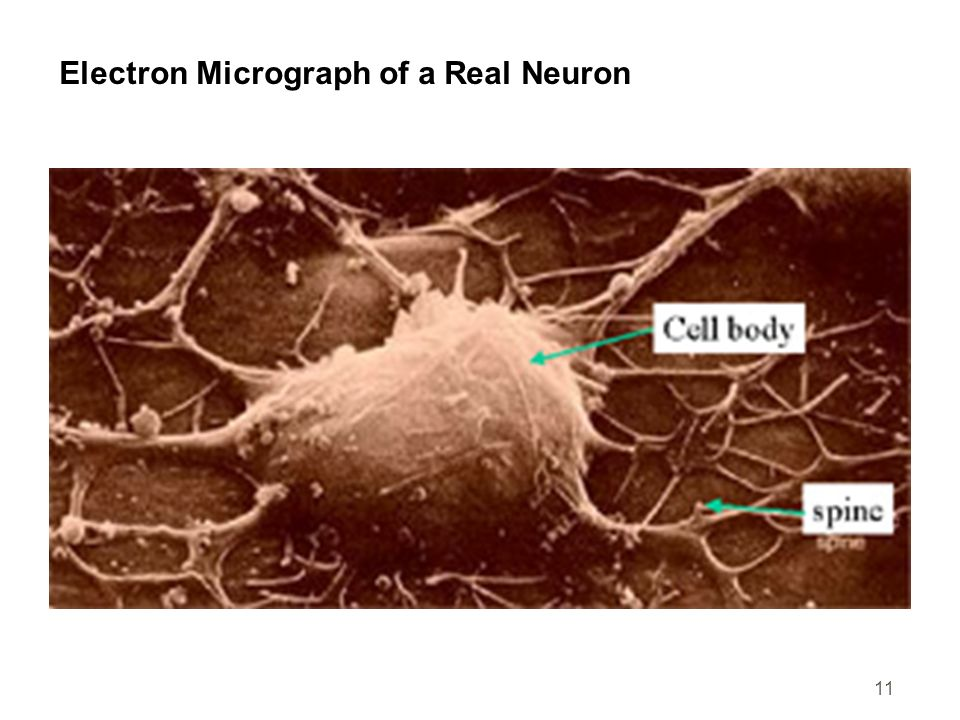 11 Electron Micrograph of a Real Neuron
