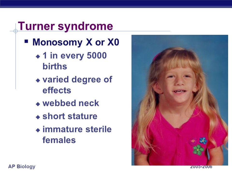 AP Biology 2005-2006 Turner syndrome Monosomy X or X0 1 in every 5000 births varied degree of effects webbed neck short stature immature sterile femal