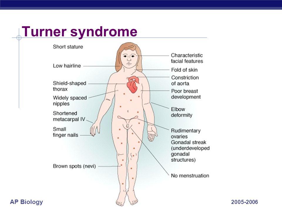 AP Biology 2005-2006 Turner syndrome