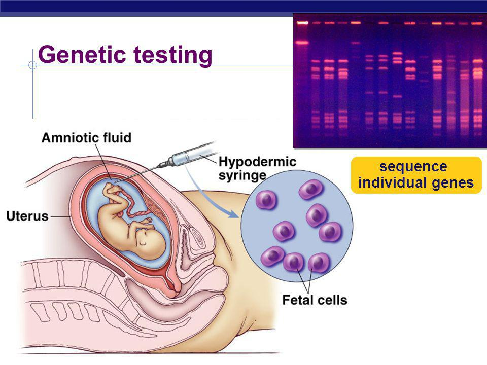 AP Biology Genetic counseling Pedigree can help us understand the past & predict the future Thousands of genetic disorders are inherited as simple recessive traits from benign conditions to deadly diseases albinism cystic fibrosis Tay sachs sickle cell anemia PKU