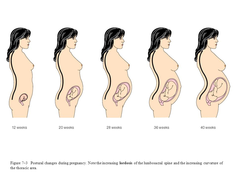 Figure 7–3 Postural changes during pregnancy. Note the increasing lordosis of the lumbosacral spine and the increasing curvature of the thoracic area.