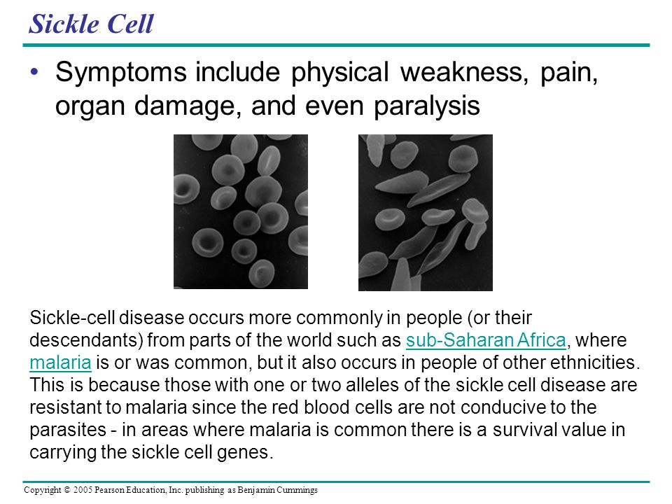 Copyright © 2005 Pearson Education, Inc. publishing as Benjamin Cummings Sickle Cell Symptoms include physical weakness, pain, organ damage, and even