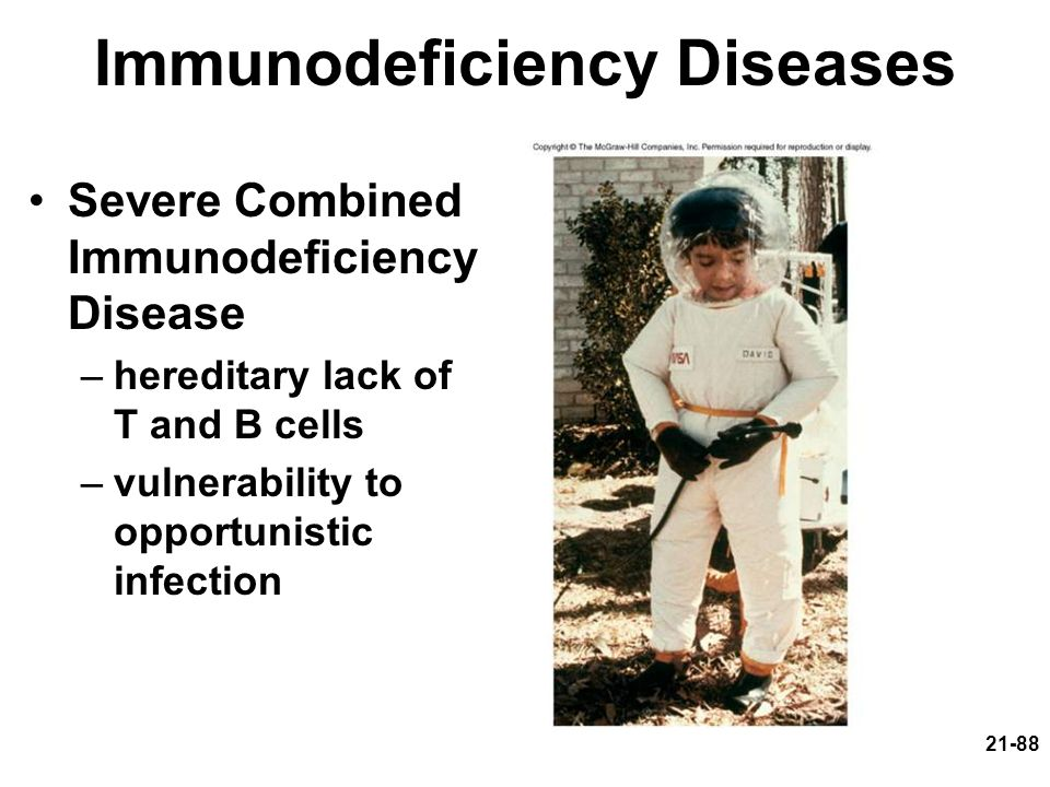 21-88 Immunodeficiency Diseases Severe Combined Immunodeficiency Disease –hereditary lack of T and B cells –vulnerability to opportunistic infection
