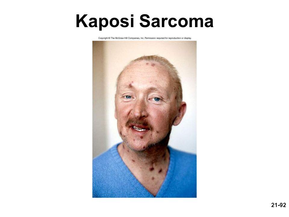 21-92 Kaposi Sarcoma