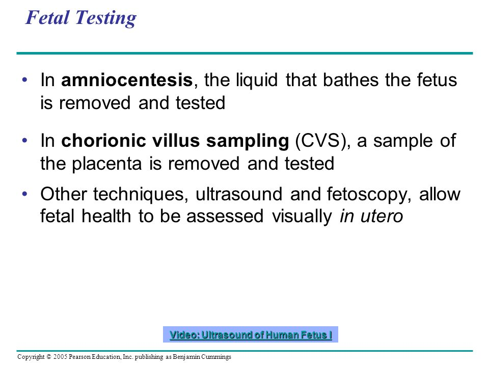 Copyright © 2005 Pearson Education, Inc. publishing as Benjamin Cummings Fetal Testing In amniocentesis, the liquid that bathes the fetus is removed a