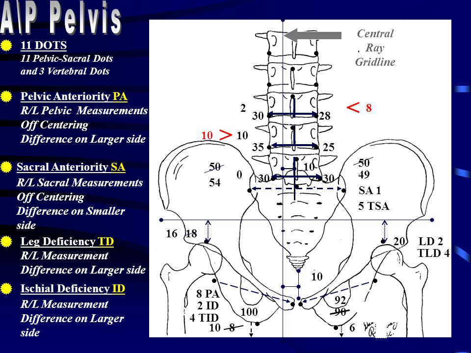 3525 > 10 30 Vertebral Measurements Measure from L5 up to T1 Add 1/2 SA L5 to T12 Add 1/2 SA -1 T11-T1 Off Centering Calculate and Show rotation on larger side Carats/Breaks 4 or greater in Red 0 10 2830 2 < 8