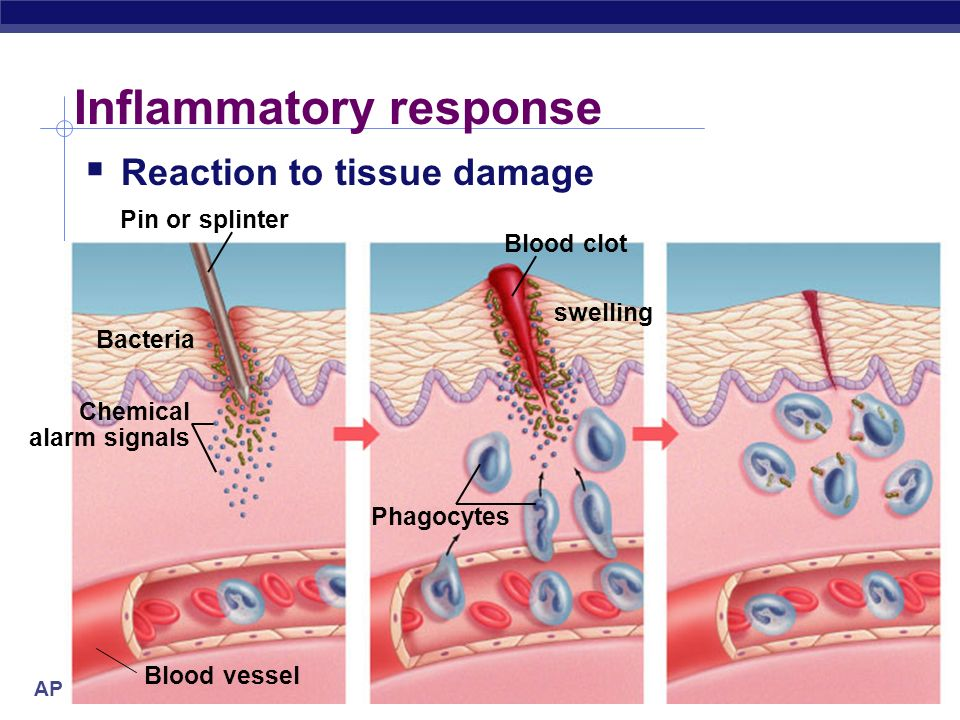 AP Biology Inflammatory response Damage to tissue triggers local non-specific inflammatory response release histamines & prostaglandins capillaries di