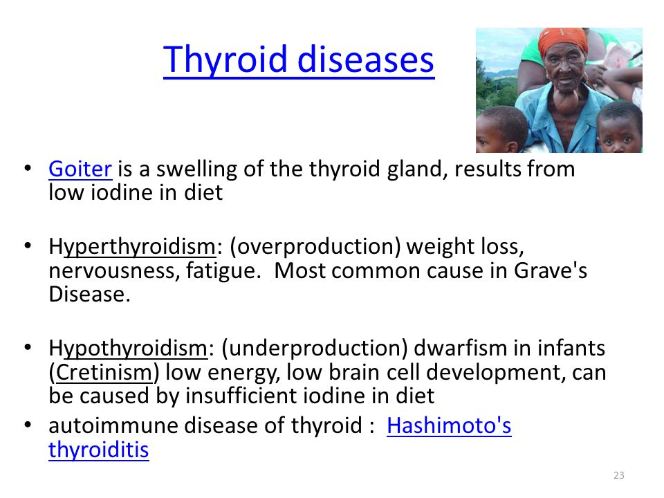 Thyroid diseases Goiter is a swelling of the thyroid gland, results from low iodine in diet Goiter Hyperthyroidism: (overproduction) weight loss, nerv