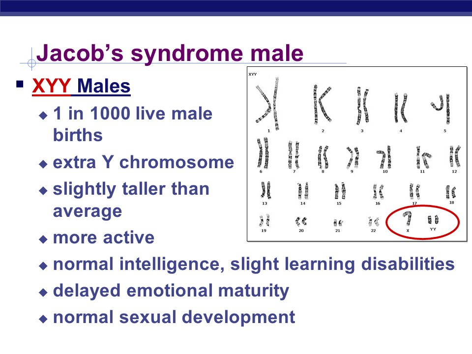 AP Biology Jacobs syndrome male XYY Males 1 in 1000 live male births extra Y chromosome slightly taller than average more active normal intelligence,