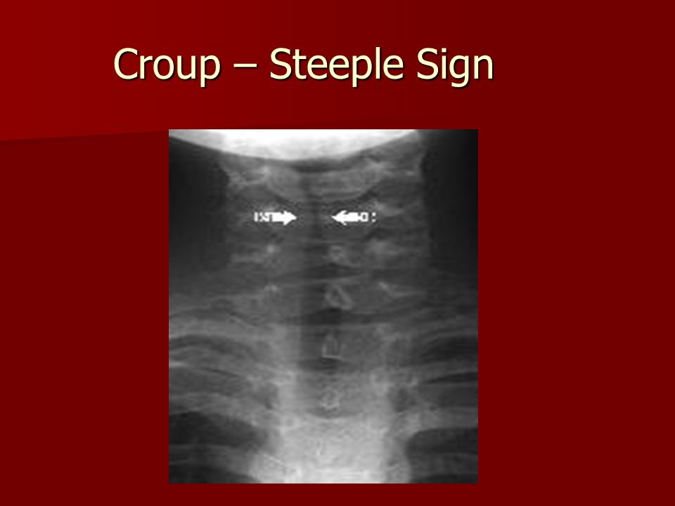 Croup – Steeple Sign
