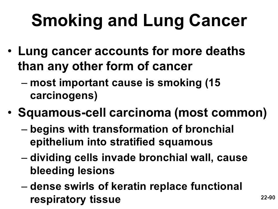 22-90 Smoking and Lung Cancer Lung cancer accounts for more deaths than any other form of cancer –most important cause is smoking (15 carcinogens) Squ